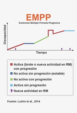 EMPP esclerosis multiple primaria progresiva