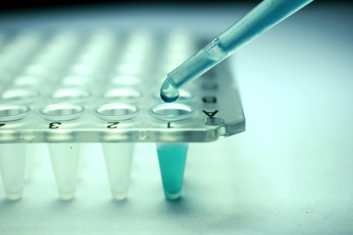 El transplante de células podría llegar a reparar el daño de la Esclerosis Múltiple