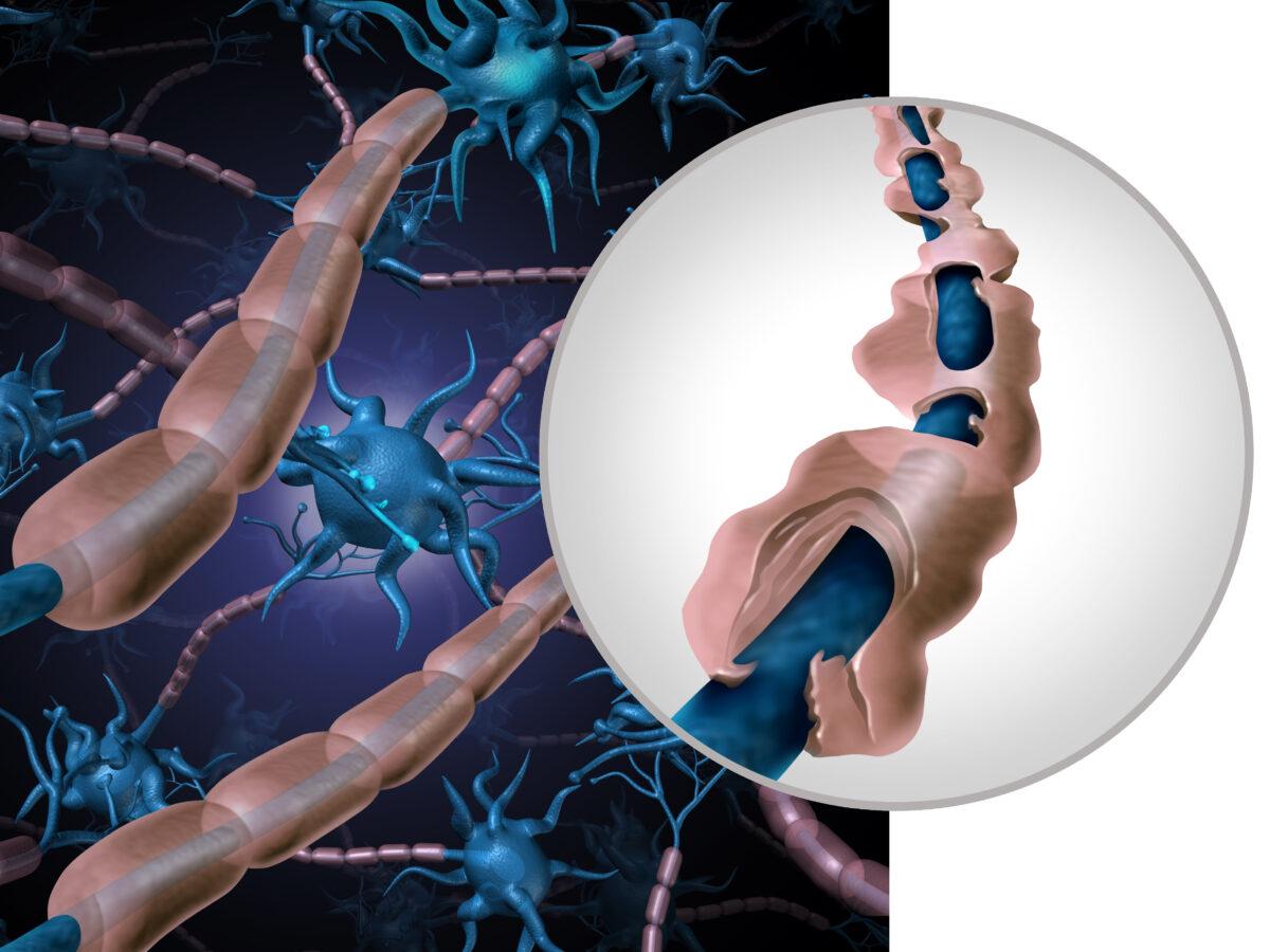 Estudio descubre un método prometedor para tratar la Esclerosis Múltiple: teofilina y remielinización