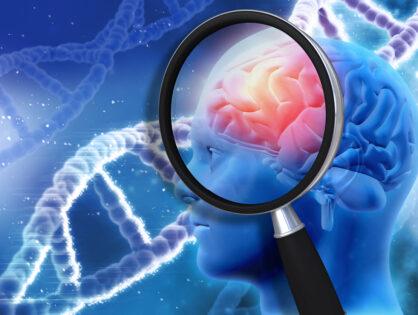 Células inmunitarias en el líquido cefalorraquídeo, probables factores efectores de la Esclerosis Múltiple