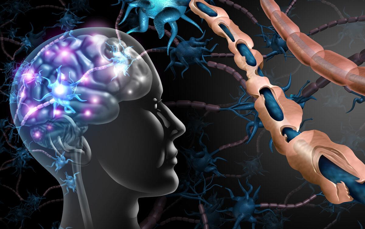 Investigadores identifican la molécula SULF2 como una posible diana para reparación de la mielina